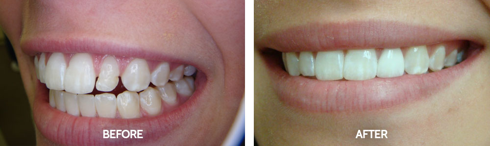 Dental Before & After Photos - Veneers