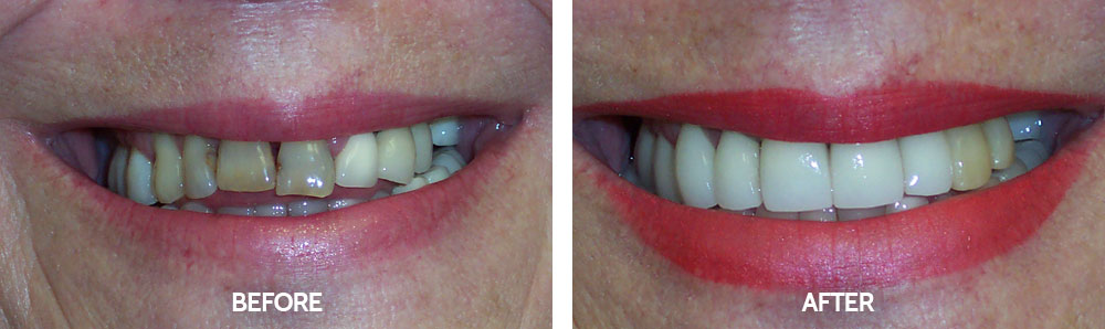 Dental Before & After Photos - Porcelain Crowns