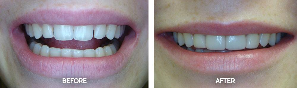 Dental Before & After Photos - Veneers